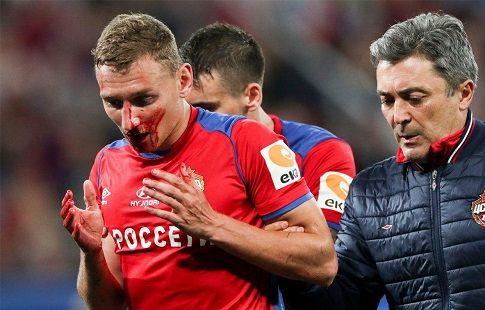 Миладинович, сломавший нос Чалову, дисквалифицирован на четыре матча
